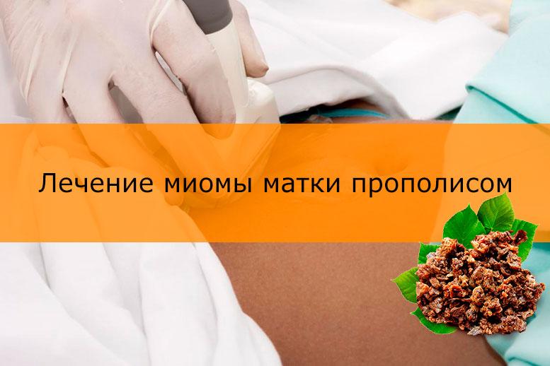 Лечение мимоы матки прополисом