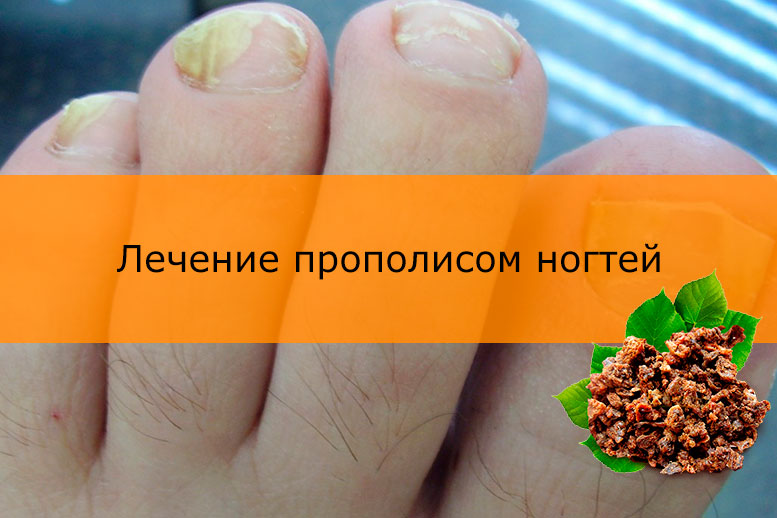 Лечение прополисом ногтей