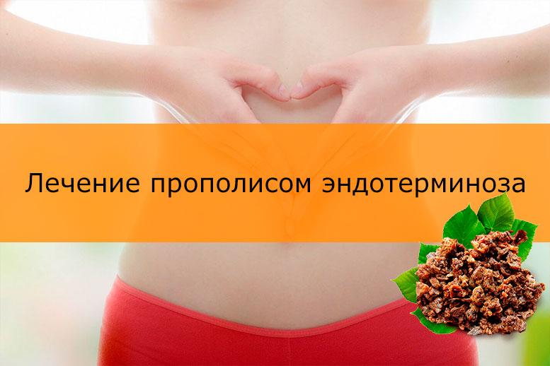Лечение прополисом эндотерминоза